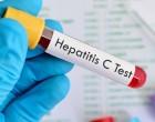 Ηπατίτιδα C : Ειδοποίηση για εξέταση σε όσους γεννήθηκαν μεταξύ 1945 -1980