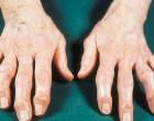 Οστεοαρθρίτιδα: Δημιουργούν πρόβλημα τα κινητά;