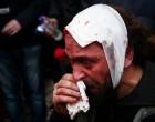 Συλλαλητήριο για τη Μακεδονία: 49 τραυματίες, μεταξύ των οποίων 25 αστυνομικοί!