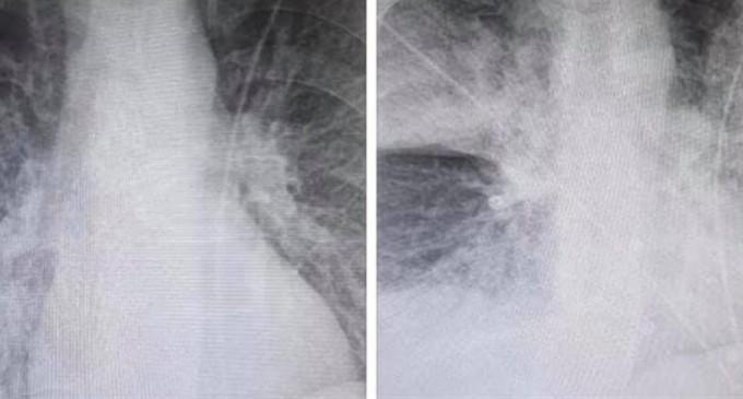 ΣΑΛΟΣ με ακτινογραφία -σοκ: «Η ραγδαία επιδείνωση 38χρονου ασθενή με κορωνοϊό»