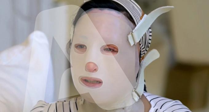Επίθεση με βιτριόλι: Καθηλωτική για ακόμη μια φορά η Ιωάννα – «Γύριζα πλευρά για να μην δω την εικόνα μου»