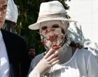Επίθεση με βιτριόλι: Νέες αποκαλύψεις – Η δράστις ζητούσε την παρακολούθηση της Ιωάννας και του 40χρονου συνεργού της